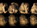 12 bức ảnh ấn tượng nhất của y học thế giới năm 2015