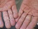 Cách chống da tay, chân bong tróc, nứt nẻ trong mùa lạnh