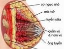 Cách ngừa viêm tuyến vú khi cho con bú