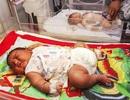 Kỷ lục mới tại Ấn Độ: Một em bé sơ sinh có cân nặng gần 6kg