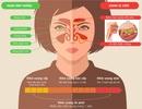 Những điều cần biết về bệnh viêm xoang