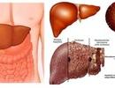 Điều trị viêm gan virus B, C bằng phương pháp mới