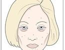Biểu hiện của bị dị ứng thực phẩm bơ sữa và lúa mì trên gương mặt