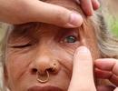 Biệt tài giúp người mù nhìn thấy sau... 5 phút