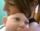 Cảm động hình ảnh em bé khuyết phần lớn hộp sọ