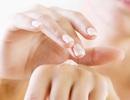 Những tác dụng phụ khi dùng thuốc kháng viêm dạng bôi