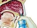 Thuốc xịt chứa dexamethasone có gây teo niêm mạc mũi?
