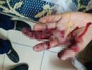 Một học sinh mất ngón tay vì tạo pháo bằng thuốc diêm