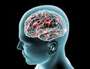 Sự khác biệt trong các hoạt động của não bộ có thể quyết định trí thông minh
