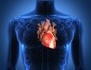 Canxi có thể làm phát triển mảng tích tụ trong động mạch