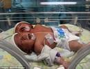 Bé 2 đầu ra đời vì hội chứng hiếm gặp