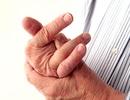 5 cách phòng chống viêm khớp khi thay đổi thời tiết