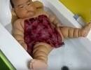 Chân tay nhiều ngấn, cẩn thận trẻ mắc bệnh Michelin