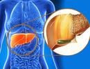 9 dấu hiệu cảnh báo gan bị nhiễm độc
