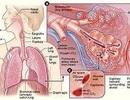 Thuyên tắc mạch phổi vì sao đáng sợ?
