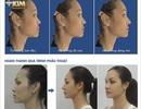 Nghe chuyên gia tư vấn những lưu ý khi nâng mũi Sline 3D đẹp như mong muốn