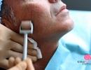 Bí quyết lăn kim trị sẹo, trẻ hóa da hiệu quả nhất