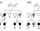 Đột biến gen có thể liên quan trực tiếp đến bệnh đa xơ cứng