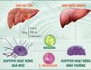 Báo động bệnh gan ngày càng phổ biến