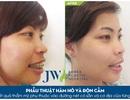 Nên lựa chọn niềng răng (chỉnh nha) hay phẫu thuật hàm