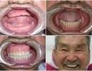 """""""Nụ cười hạnh phúc"""" mang tới 30 cơ hội làm răng miễn phí trị giá 300 triệu đồng/trường hợp"""