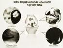 Nhiều bất cập trong điều trị thoái hoá khớp giai đoạn đầu