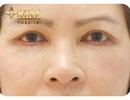 Thẩm mỹ mắt Midface: bí quyết lưu giữ thanh xuân cho tuổi trung niên