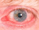 Không tự ý dùng thuốc khi bị đỏ mắt