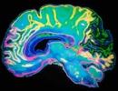 Thuốc trị viêm mũi dị ứng làm tăng nguy cơ teo não và sa sút trí tuệ