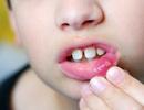 Ba biện pháp đơn giản ngăn ngừa nhiệt miệng