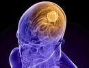 Hi vọng mới cho bệnh nhân bị khối u não nguy hiểm