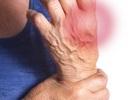 Nghiên cứu PRECISION đánh giá nguy cơ tim mạch ở bệnh nhân dùng NSAID