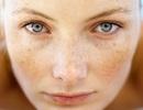 Những điều cần biết về melanin và nám da