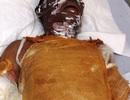 Người đàn ông biến thành ngọn đuốc sống vì bị tẩm xăng đốt