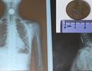 Gắp đồng xu có đường kính hơn 2cm từ thực quản bé gái