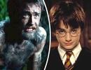 """Diễn cảnh khỏa thân, nam diễn viên """"Harry Potter"""" muốn """"lột xác"""""""