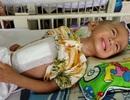 Thương bé 17 tháng tuổi chết mòn trên giường bệnh trong cảnh không cha, mẹ bị tâm thần