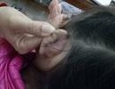Học sinh lớp 2 bị cô giáo xách đứt tai vì oẳn tù tì trong giờ học