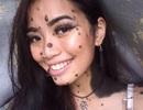 Cô gái có nốt ruồi khắp người đi thi Hoa hậu Hoàn vũ