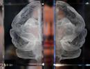 6 yếu tố làm tăng nguy cơ mắc bệnh Alzheimer