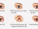 Inforgraphics: Cách phòng và trị đau mắt đỏ hiệu quả