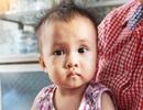 Thiếu 50 triệu đồng mổ tim, tính mạng bé 15 tháng tuổi lay lắt như đèn trước gió