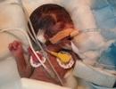 """Em bé """"bé nhất hành tinh"""" được phẫu thuật tim thành công"""