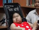 Tưởng bị béo phì, không ngờ bé gái mắc bệnh cực hiếm