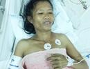 Cứu bệnh nhân bị u xơ tử cung lớn kèm suy tim nặng