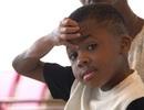 Ca cấy ghép tay ở trẻ em đầu tiên trên thế giới thành công