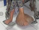 """Giải cứu người phụ nữ hơn 39 năm mang """"bàn chân voi"""" khổng lồ nặng 10kg"""
