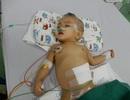 Cháu bé 11 tháng tuổi bị não úng thủy đã mất