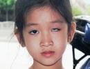 Vụ học sinh bị trúng thước, mù một mắt: Xem xét mức độ vi phạm của tập thể, cá nhân