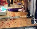 Hà Nội: Nghi phạm chém người trong cửa hàng thời trang là chồng nạn nhân